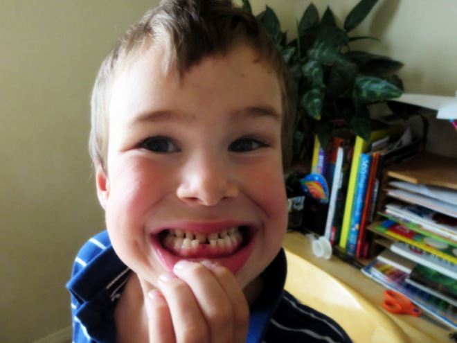 Ronin lost his first tooth (age 6 1/2)